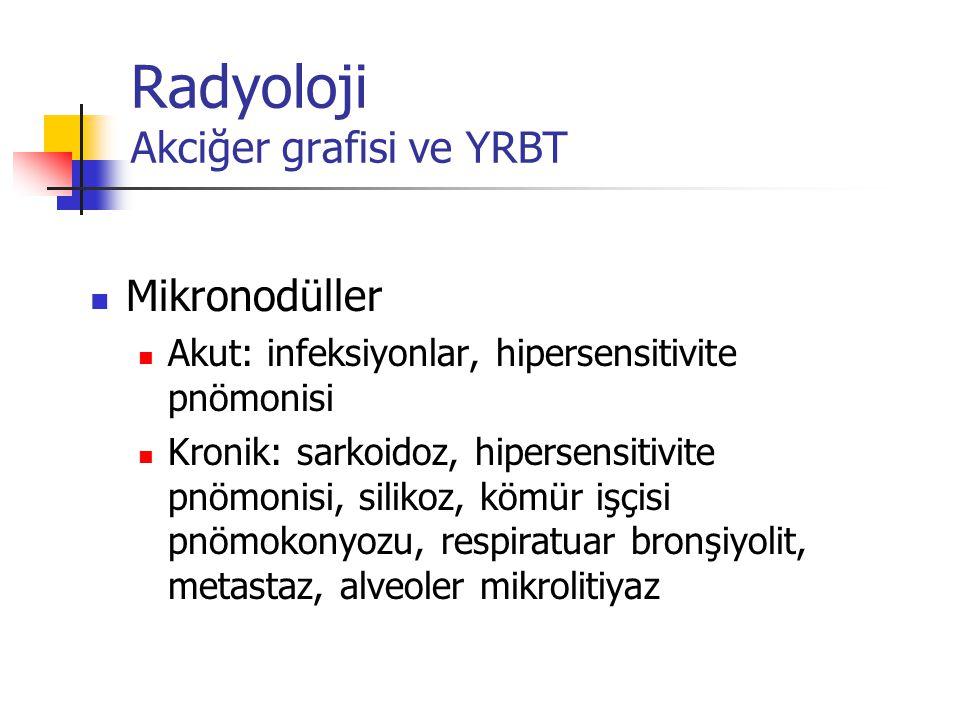Radyoloji Akciğer grafisi ve YRBT Mikronodüller Akut: infeksiyonlar, hipersensitivite pnömonisi Kronik: sarkoidoz, hipersensitivite pnömonisi, silikoz