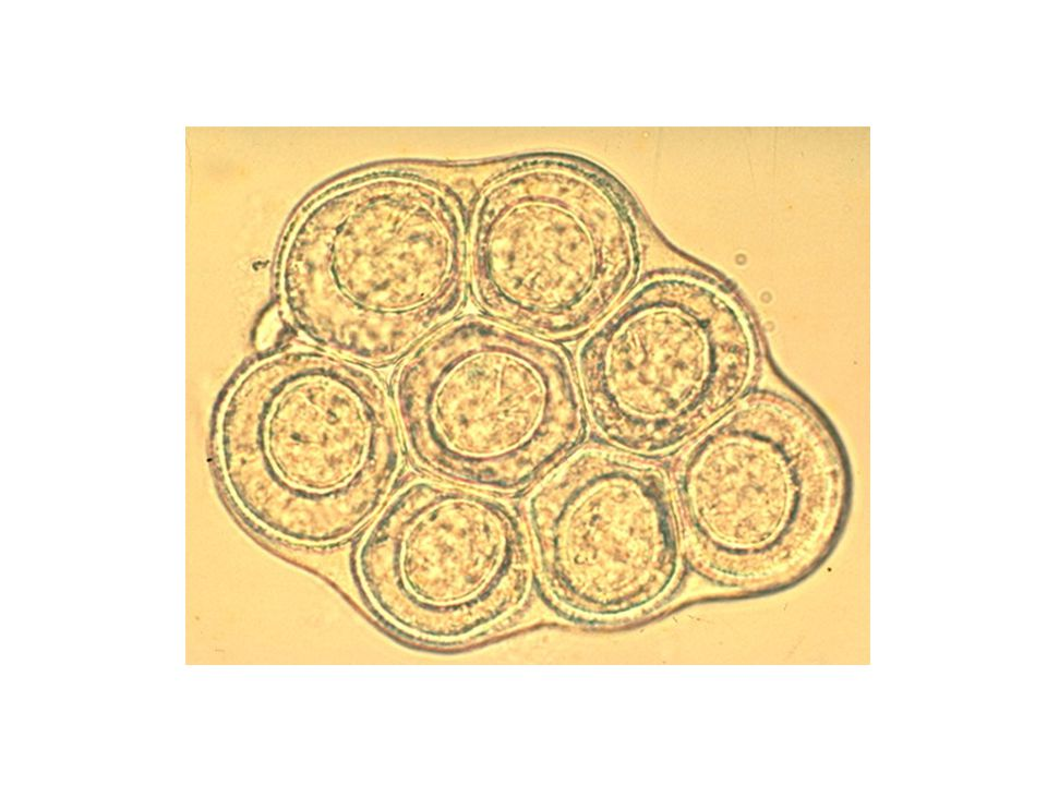 İnsan sadece son konak Hymenolepis diminuta yumurtası enfekte kemiricilerin ve insanların dışkısıyla atılır Eklembacaklılar (Tribolium, pire gibi) tarafından alınır (onkosfer, sistiserkoid) Cysticercoid larva ince bağırsakta açılır scolex ters döner çekmenleriyle bağırsak duvarına yapışır 20 günde erişkin forma döner 20-60 cm uzunluğunda, 4mm eninde