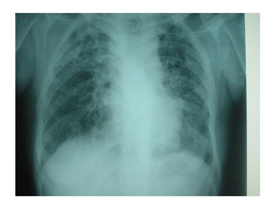 Kontrlateral Pnömoraks %0.8 KOAH'lı hastalar Ameliyat öncesi anestezi uyarılmalı – Azot kullanmaktan sakınmak – Yüksek basınçlı ventilasyondan kaçınmak – Basıncın ani yükselmesi – CO2 yükselmesi Acil göğüs tüp drenajı
