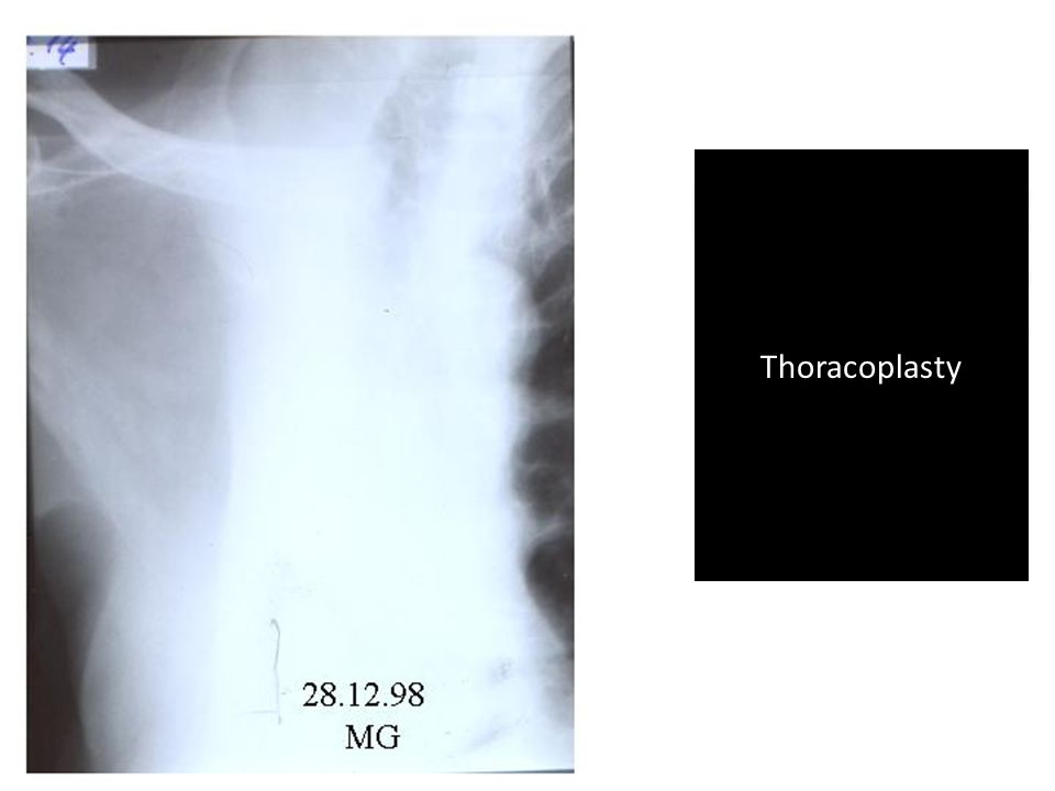 39 Thoracoplasty