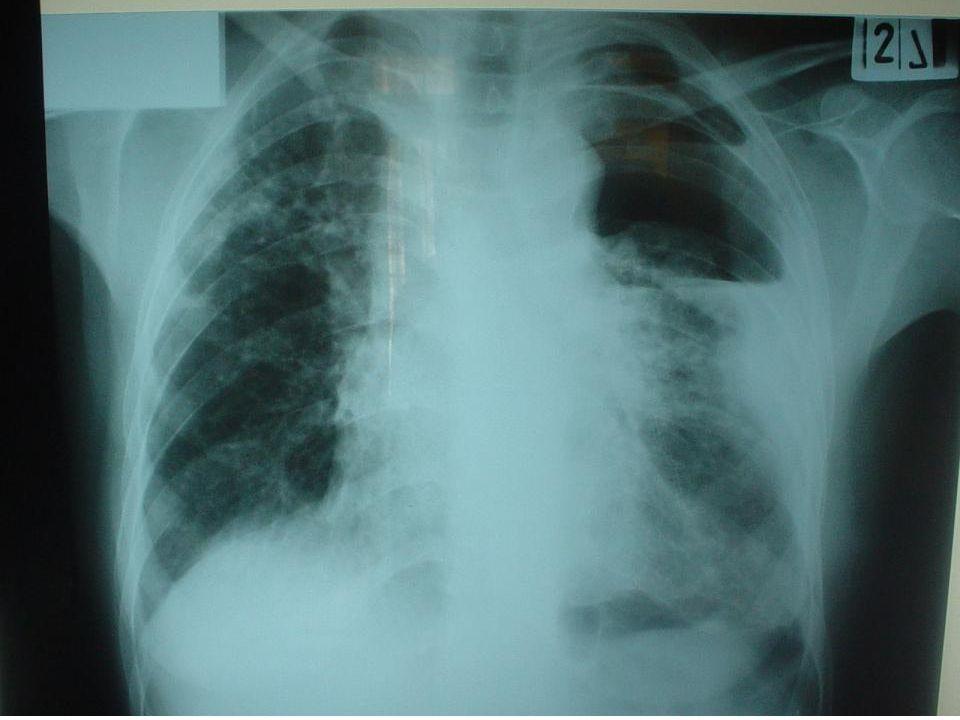 15 Bronchogenic carcinoma and postoperative empyema: is survival really enhanced.