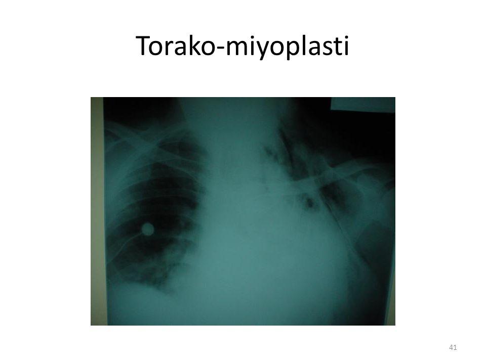 41 Torako-miyoplasti