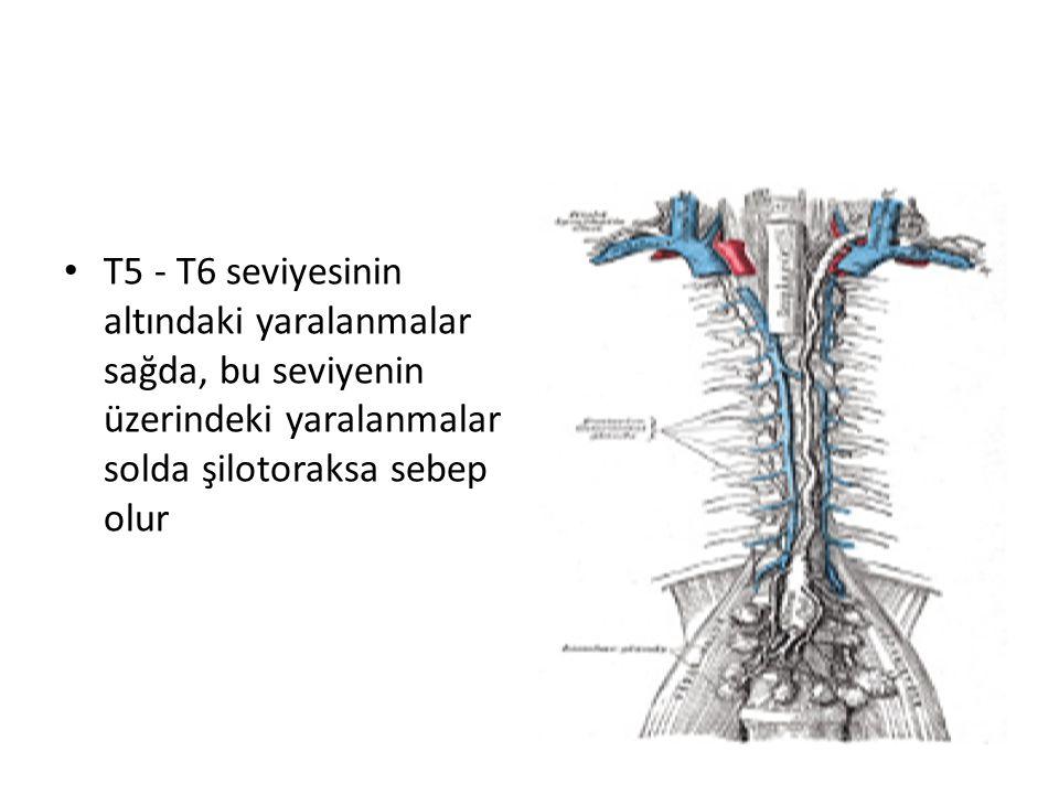 T5 - T6 seviyesinin altındaki yaralanmalar sağda, bu seviyenin üzerindeki yaralanmalar solda şilotoraksa sebep olur