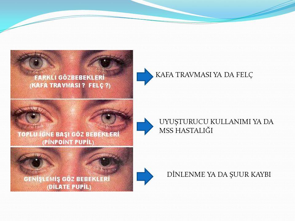 Hastadan veya yakın çevresinden kısa sürede öykü almak üzere kullanılabilecek bir kısaltma: HİKAYE H : Hastalık öyküsü - Geçmiş hastalık, ameliyat, travma öyküsü İ : İlaçlar - Kullandığı ilaçlar (Sürekli, geçici, doğum kontrol hapları) K : Kazanın veya hastalığın ortaya çıkış nedeni A : Alerjileri ve alışkanlıkları (sigara - alkol içimi gibi) Y : Yedikleri/içtikleri - Son yediği saat, son yediği ve içtiği, miktarları E : Emareler - Belirti ve bulgular