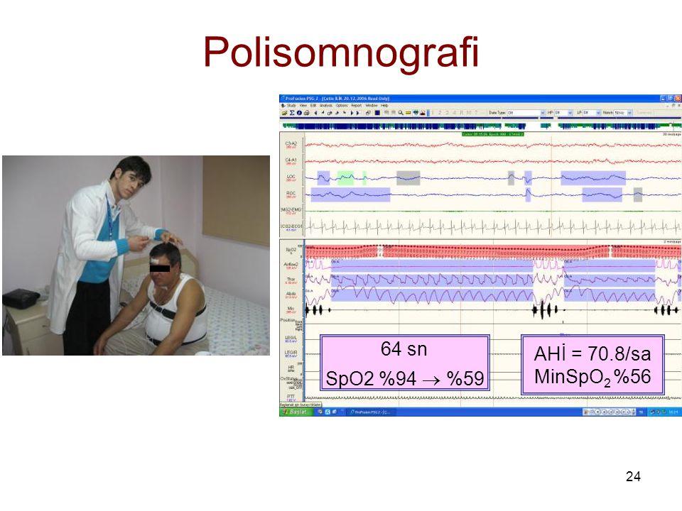 24 Polisomnografi 64 sn SpO2 %94  %59 AHİ = 70.8/sa MinSpO 2 %56