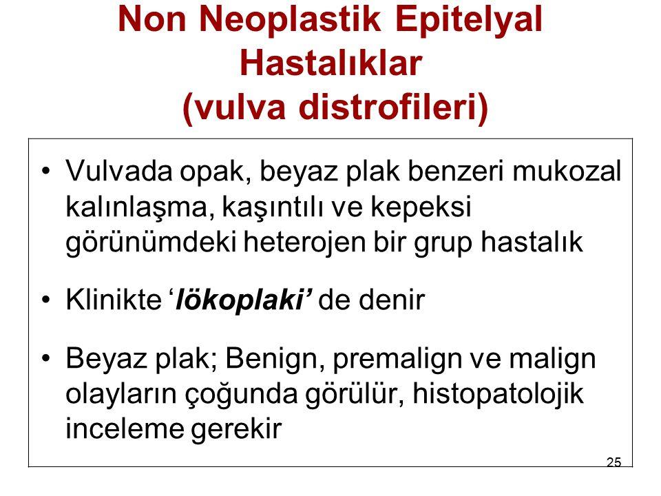 25 Non Neoplastik Epitelyal Hastalıklar (vulva distrofileri) Vulvada opak, beyaz plak benzeri mukozal kalınlaşma, kaşıntılı ve kepeksi görünümdeki het