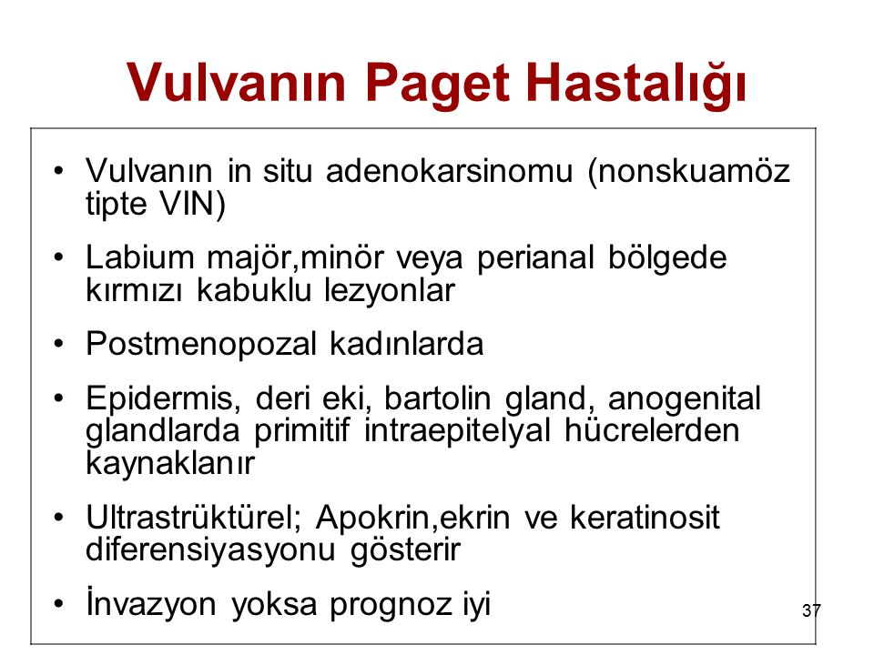 37 Vulvanın Paget Hastalığı Vulvanın in situ adenokarsinomu (nonskuamöz tipte VIN) Labium majör,minör veya perianal bölgede kırmızı kabuklu lezyonlar