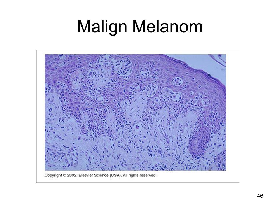 46 Malign Melanom