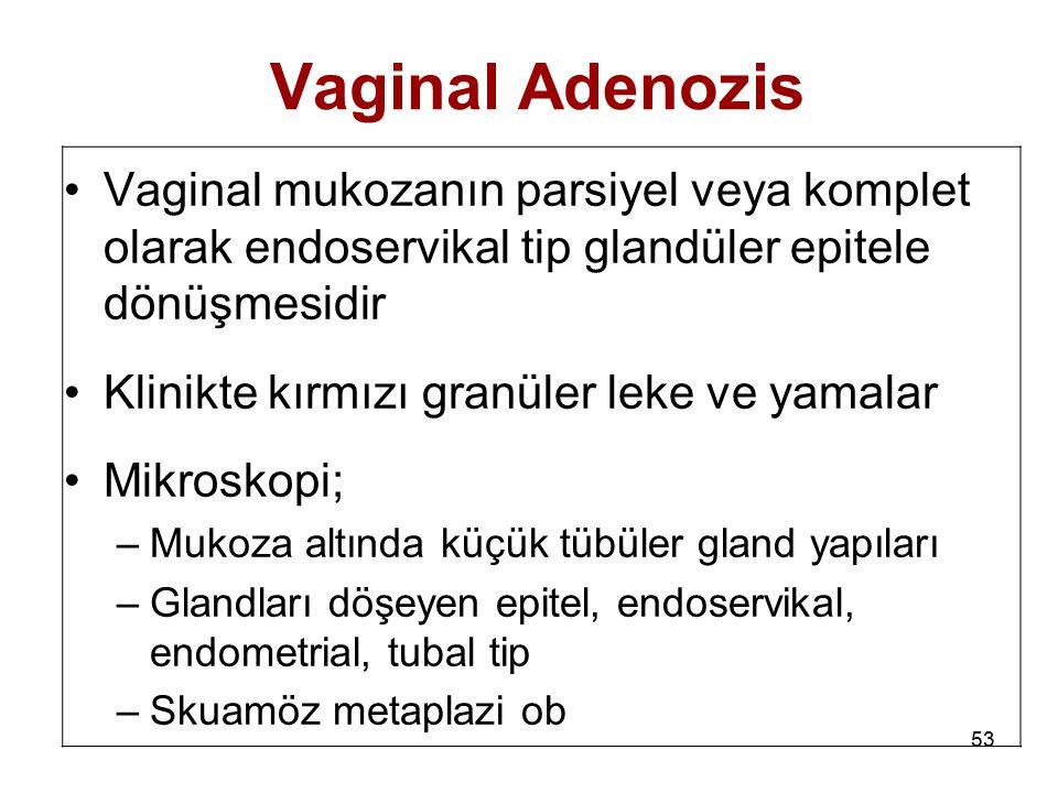 53 Vaginal Adenozis Vaginal mukozanın parsiyel veya komplet olarak endoservikal tip glandüler epitele dönüşmesidir Klinikte kırmızı granüler leke ve y