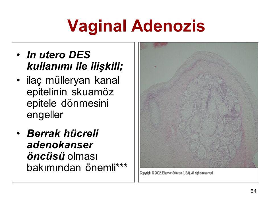 54 Vaginal Adenozis In utero DES kullanımı ile ilişkili; ilaç mülleryan kanal epitelinin skuamöz epitele dönmesini engeller Berrak hücreli adenokanser