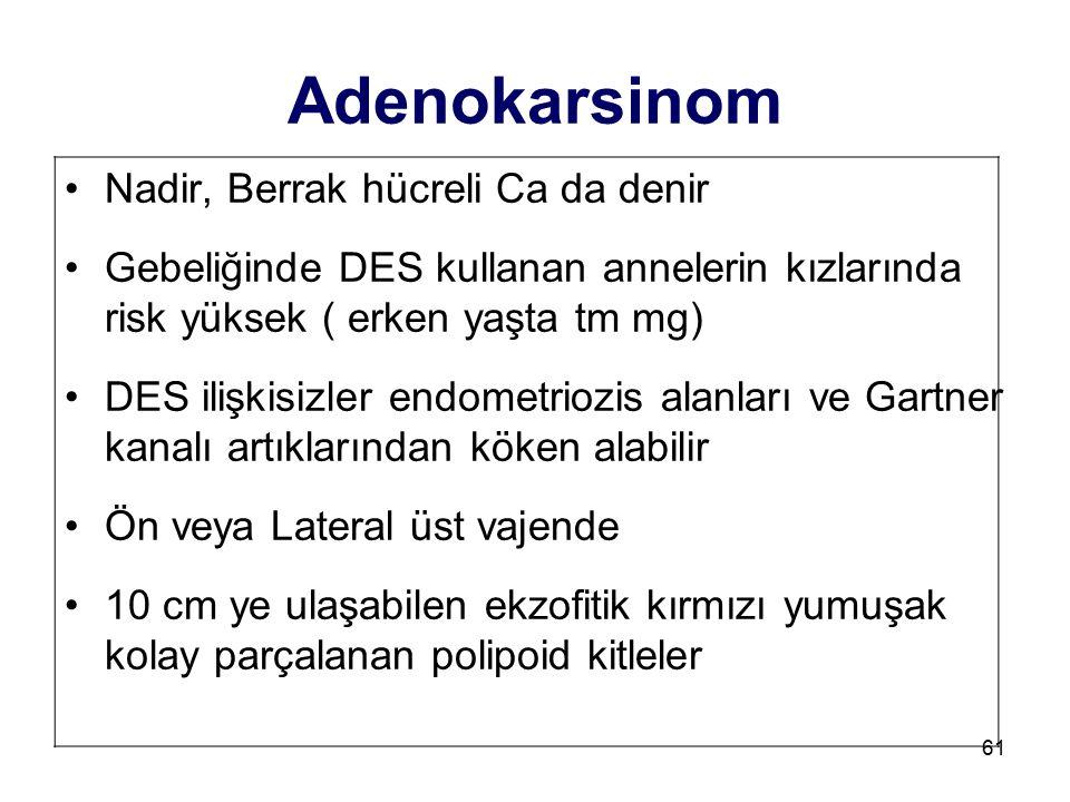 61 Adenokarsinom Nadir, Berrak hücreli Ca da denir Gebeliğinde DES kullanan annelerin kızlarında risk yüksek ( erken yaşta tm mg) DES ilişkisizler end