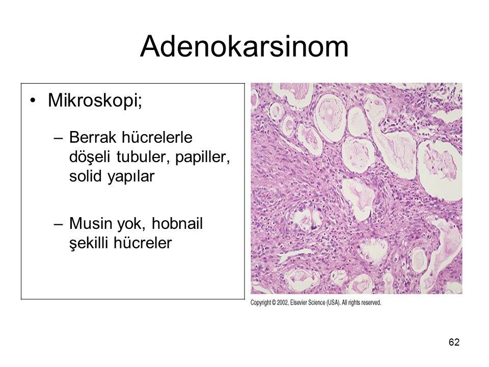 62 Adenokarsinom Mikroskopi; –Berrak hücrelerle döşeli tubuler, papiller, solid yapılar –Musin yok, hobnail şekilli hücreler