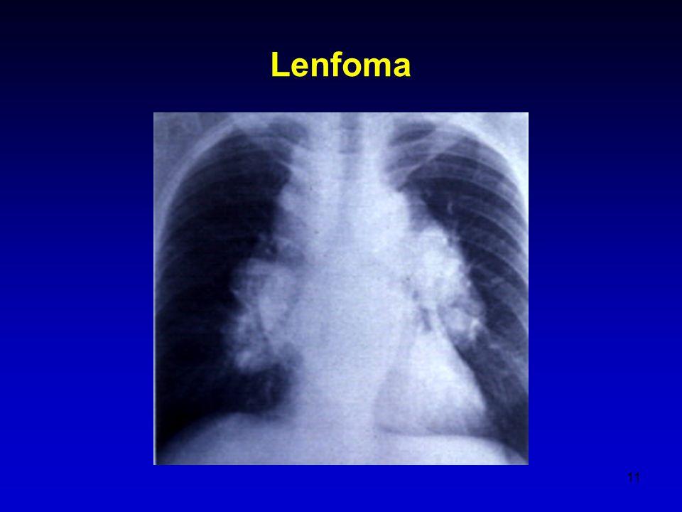 11 Lenfoma