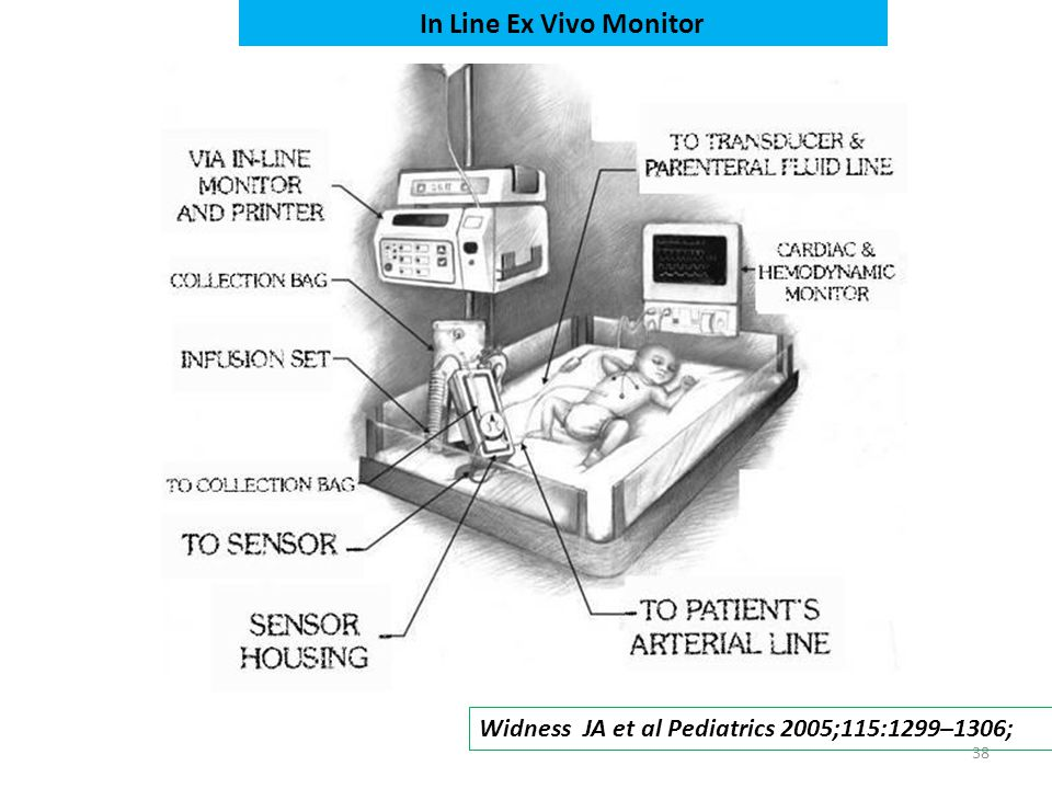 38 Widness JA et al Pediatrics 2005;115:1299–1306; In Line Ex Vivo Monitor