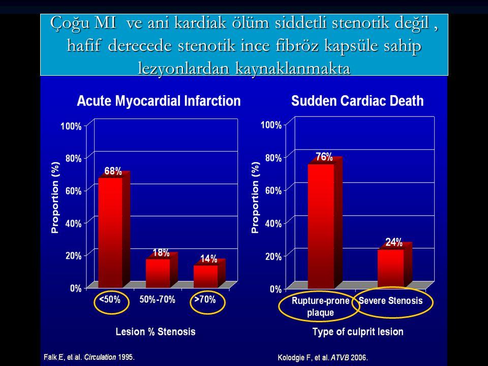 Çoğu MI ve ani kardiak ölüm siddetli stenotik değil, hafif derecede stenotik ince fibröz kapsüle sahip lezyonlardan kaynaklanmakta