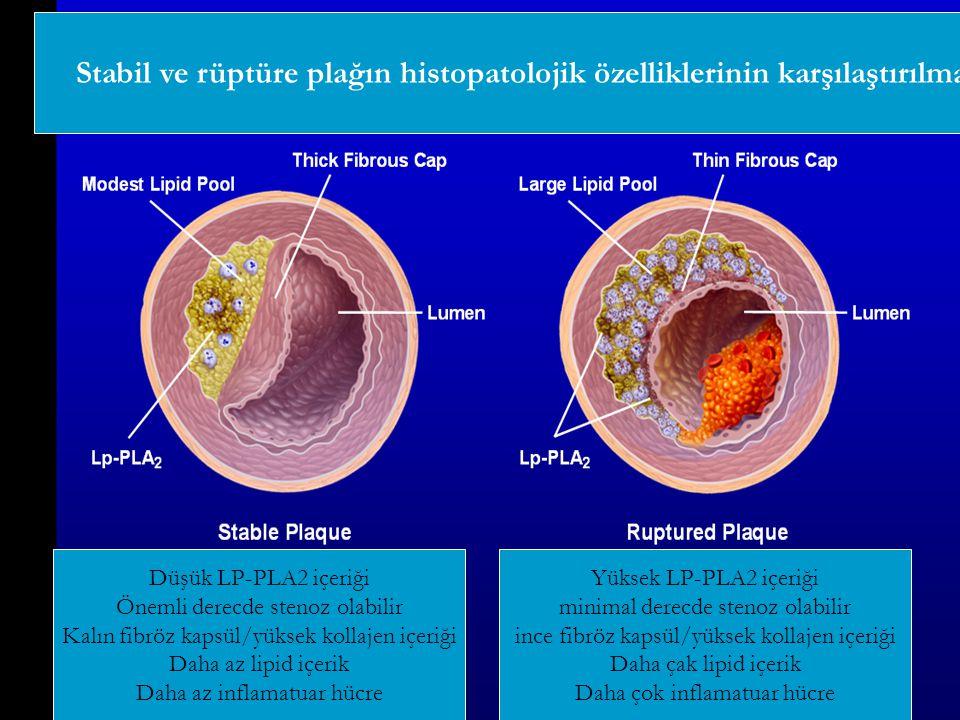 Stabil ve rüptüre plağın histopatolojik özelliklerinin karşılaştırılması Düşük LP-PLA2 içeriği Önemli derecde stenoz olabilir Kalın fibröz kapsül/yüks