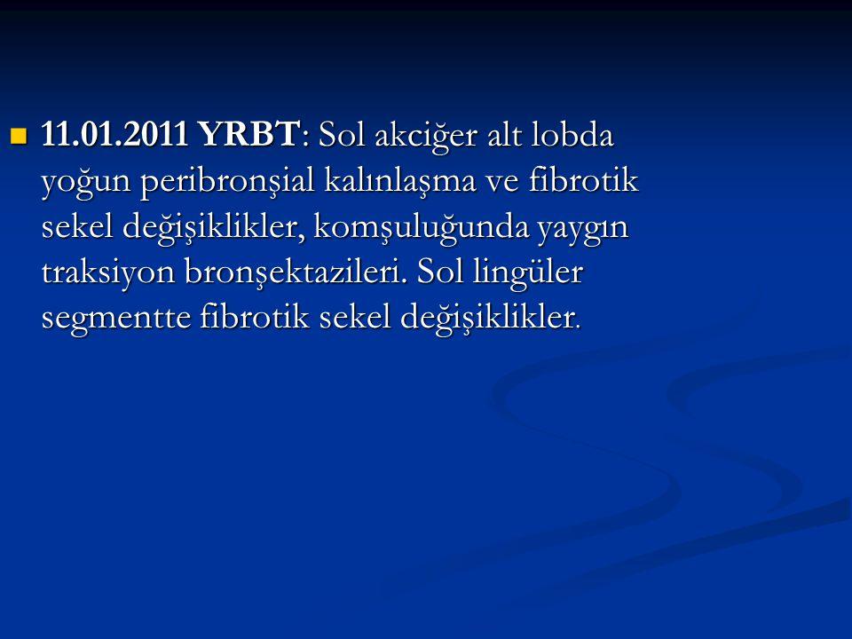 11.01.2011 YRBT: Sol akciğer alt lobda yoğun peribronşial kalınlaşma ve fibrotik sekel değişiklikler, komşuluğunda yaygın traksiyon bronşektazileri.