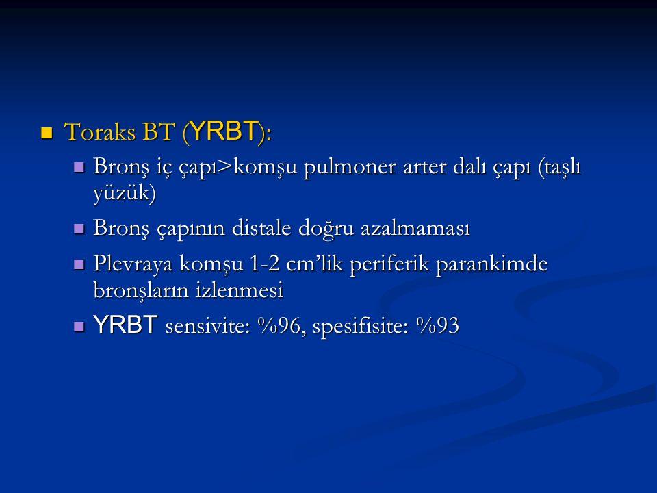 Toraks BT ( YRBT ): Toraks BT ( YRBT ): Bronş iç çapı>komşu pulmoner arter dalı çapı (taşlı yüzük) Bronş iç çapı>komşu pulmoner arter dalı çapı (taşlı yüzük) Bronş çapının distale doğru azalmaması Bronş çapının distale doğru azalmaması Plevraya komşu 1-2 cm'lik periferik parankimde bronşların izlenmesi Plevraya komşu 1-2 cm'lik periferik parankimde bronşların izlenmesi YRBT sensivite: %96, spesifisite: %93 YRBT sensivite: %96, spesifisite: %93