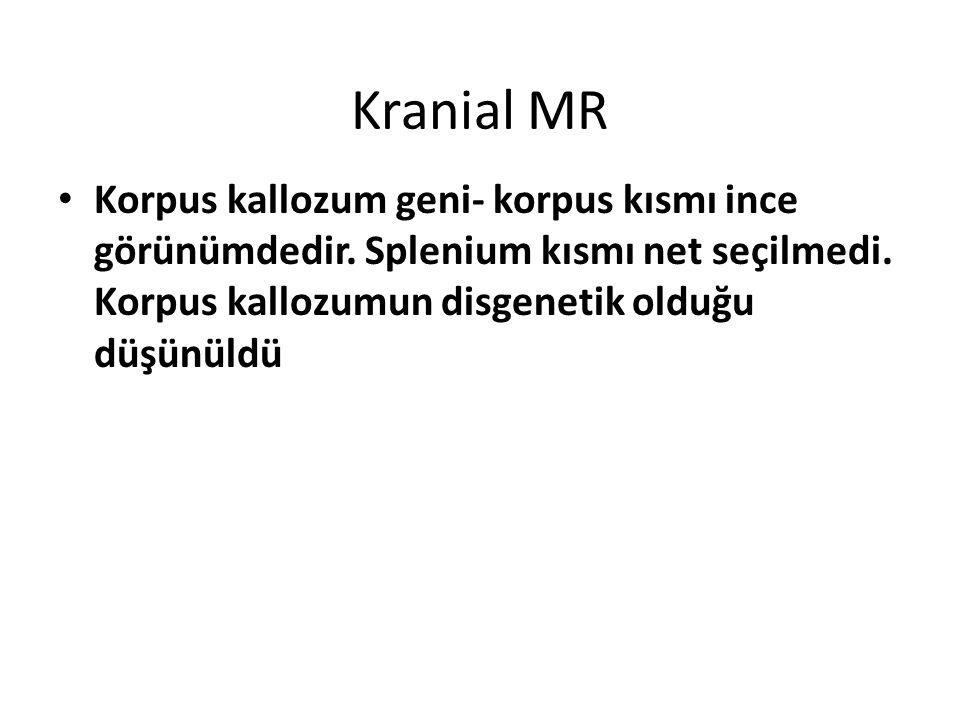 Kranial MR Korpus kallozum geni- korpus kısmı ince görünümdedir. Splenium kısmı net seçilmedi. Korpus kallozumun disgenetik olduğu düşünüldü