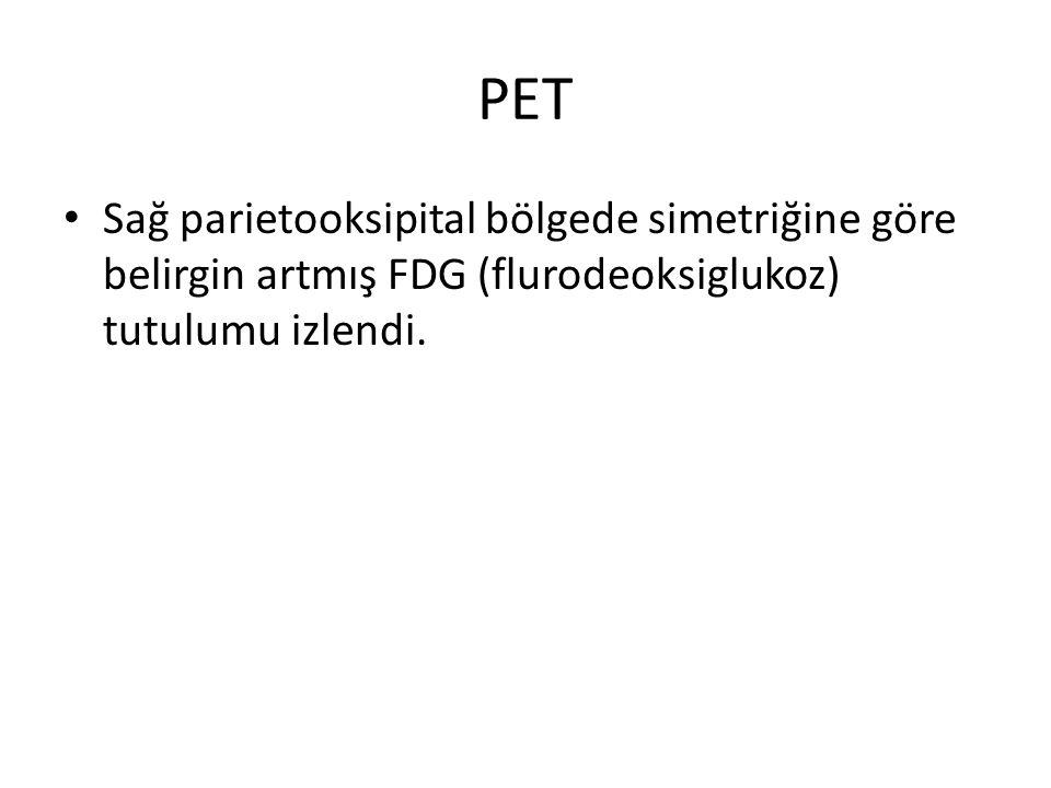 PET Sağ parietooksipital bölgede simetriğine göre belirgin artmış FDG (flurodeoksiglukoz) tutulumu izlendi.