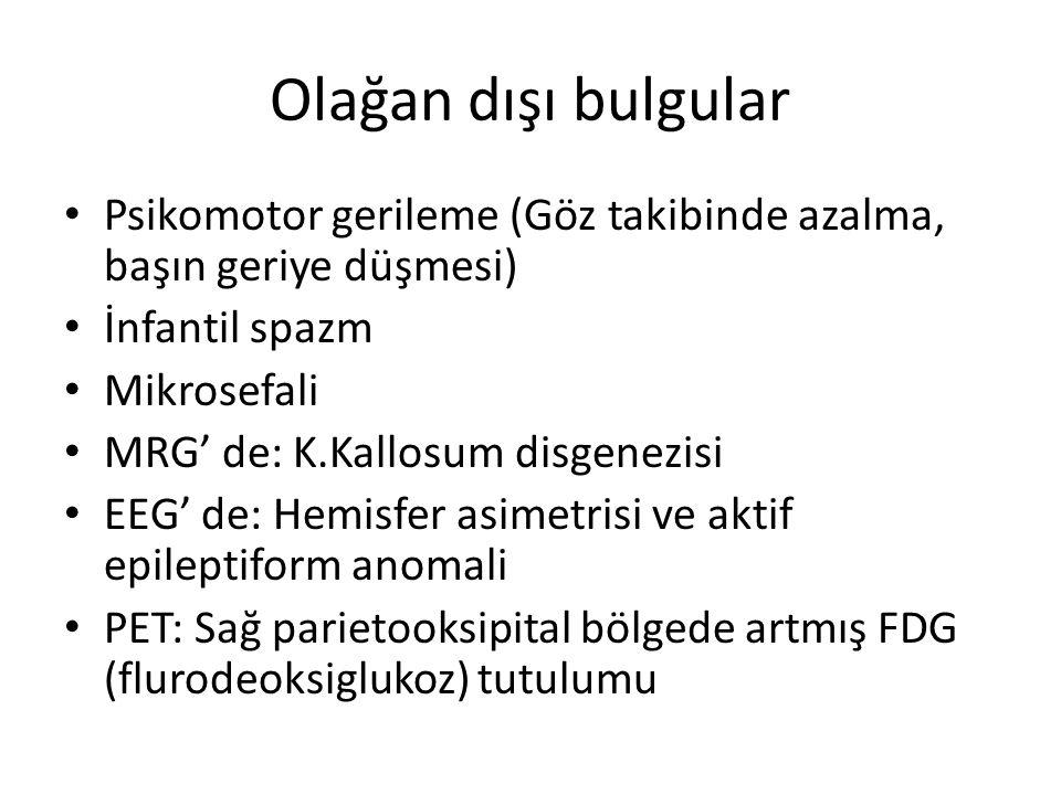 Olağan dışı bulgular Psikomotor gerileme (Göz takibinde azalma, başın geriye düşmesi) İnfantil spazm Mikrosefali MRG' de: K.Kallosum disgenezisi EEG'