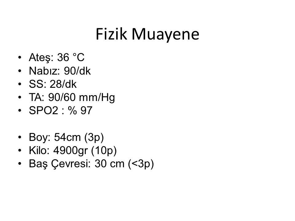 Fizik Muayene Ateş: 36 °C Nabız: 90/dk SS: 28/dk TA: 90/60 mm/Hg SPO2 : % 97 Boy: 54cm (3p) Kilo: 4900gr (10p) Baş Çevresi: 30 cm (<3p)