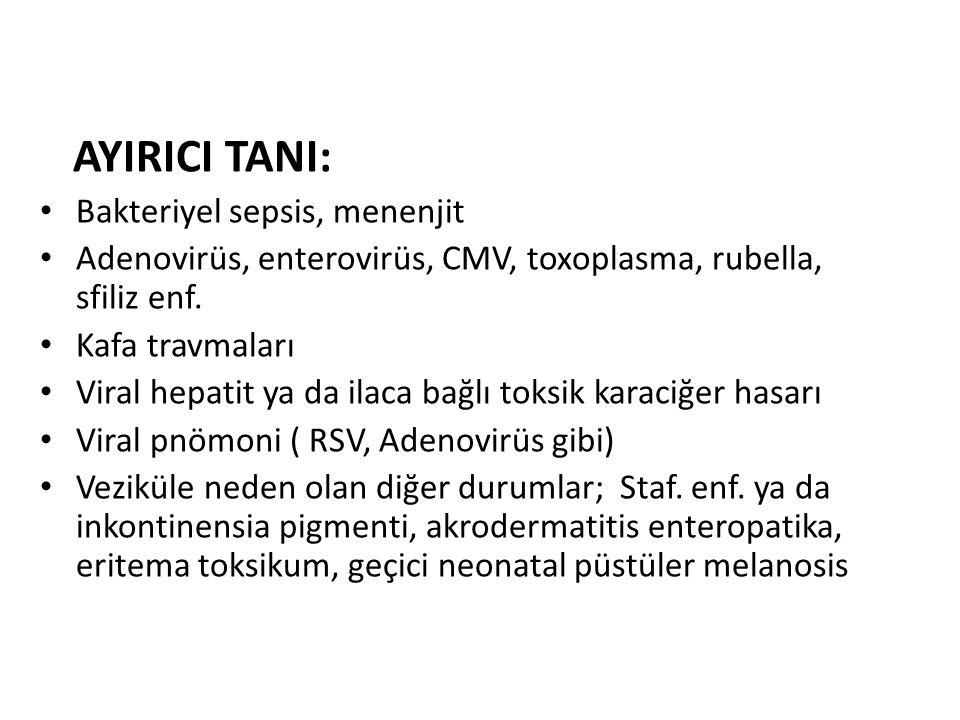 AYIRICI TANI: Bakteriyel sepsis, menenjit Adenovirüs, enterovirüs, CMV, toxoplasma, rubella, sfiliz enf. Kafa travmaları Viral hepatit ya da ilaca bağ