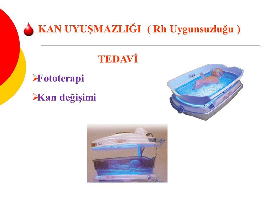 KAN UYUŞMAZLIĞI ( Rh Uygunsuzluğu ) TEDAVİ  Fototerapi  Kan değişimi