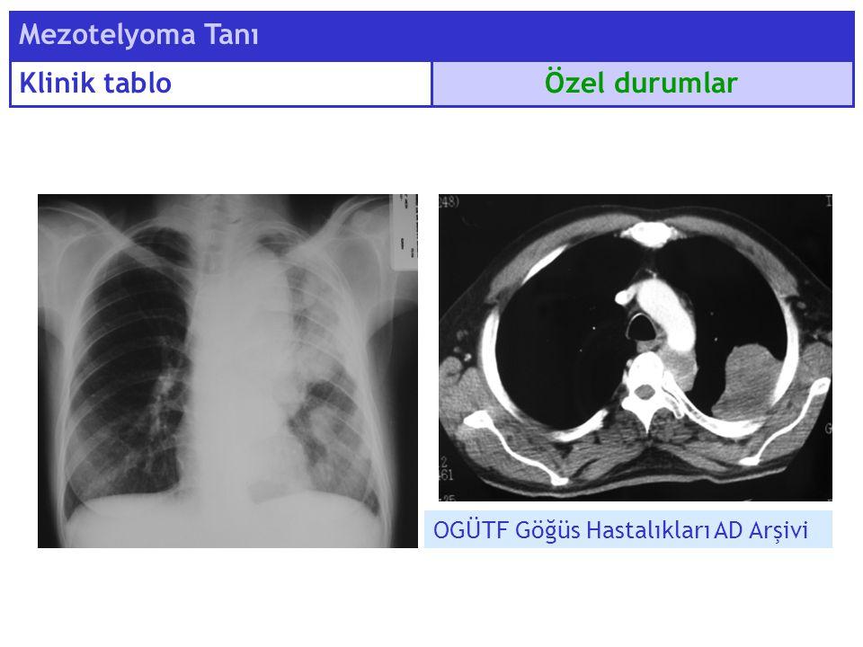 Özel durumlar Mezotelyoma Tanı Klinik tablo OGÜTF Göğüs Hastalıkları AD Arşivi