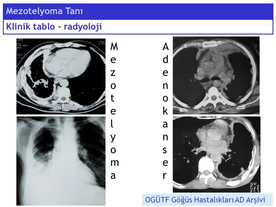 Mezotelyoma Tanı Klinik tablo - radyoloji OGÜTF Göğüs Hastalıkları AD Arşivi MezotelyomaMezotelyoma AdenokanserAdenokanser
