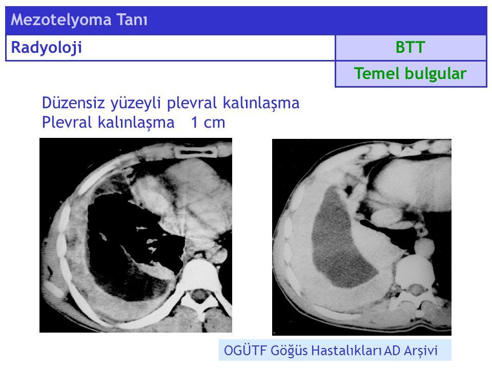 BTT Mezotelyoma Tanı Radyoloji Düzensiz yüzeyli plevral kalınlaşma Plevral kalınlaşma 1 cm Temel bulgular OGÜTF Göğüs Hastalıkları AD Arşivi