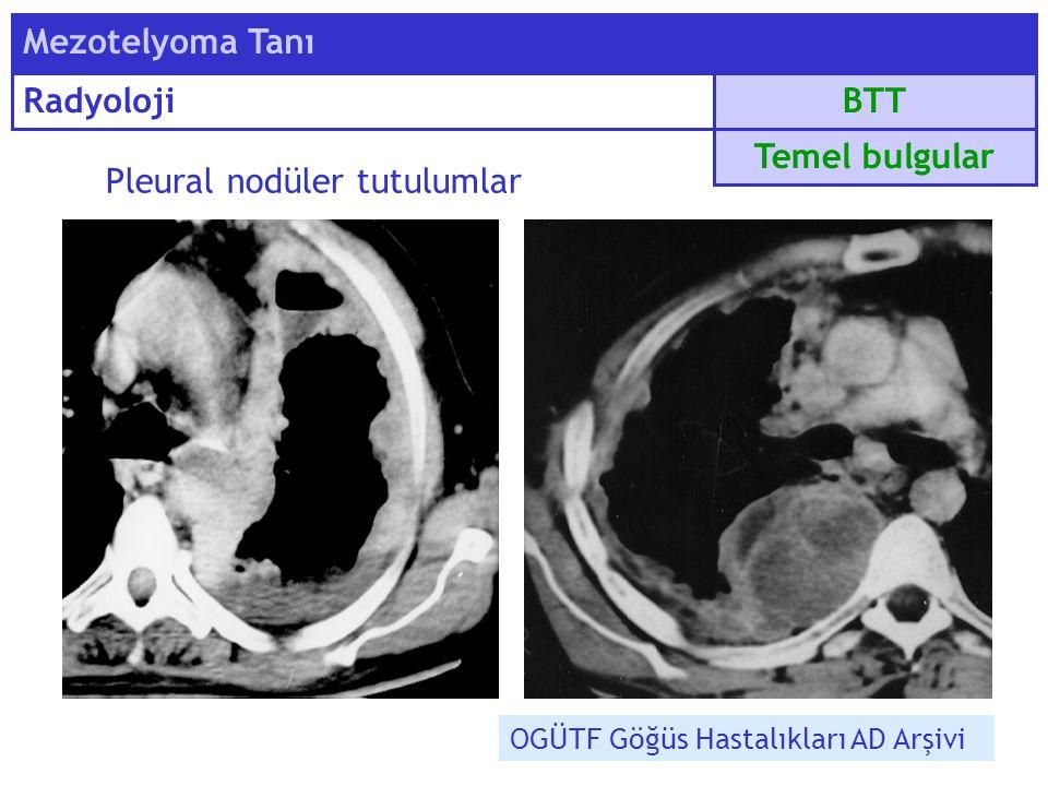 Pleural nodüler tutulumlar BTT Mezotelyoma Tanı Radyoloji Temel bulgular OGÜTF Göğüs Hastalıkları AD Arşivi