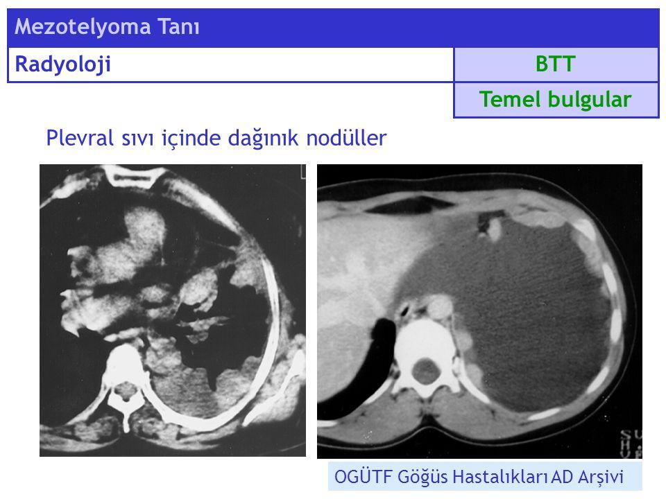 Plevral sıvı içinde dağınık nodüller BTT Mezotelyoma Tanı Radyoloji Temel bulgular OGÜTF Göğüs Hastalıkları AD Arşivi