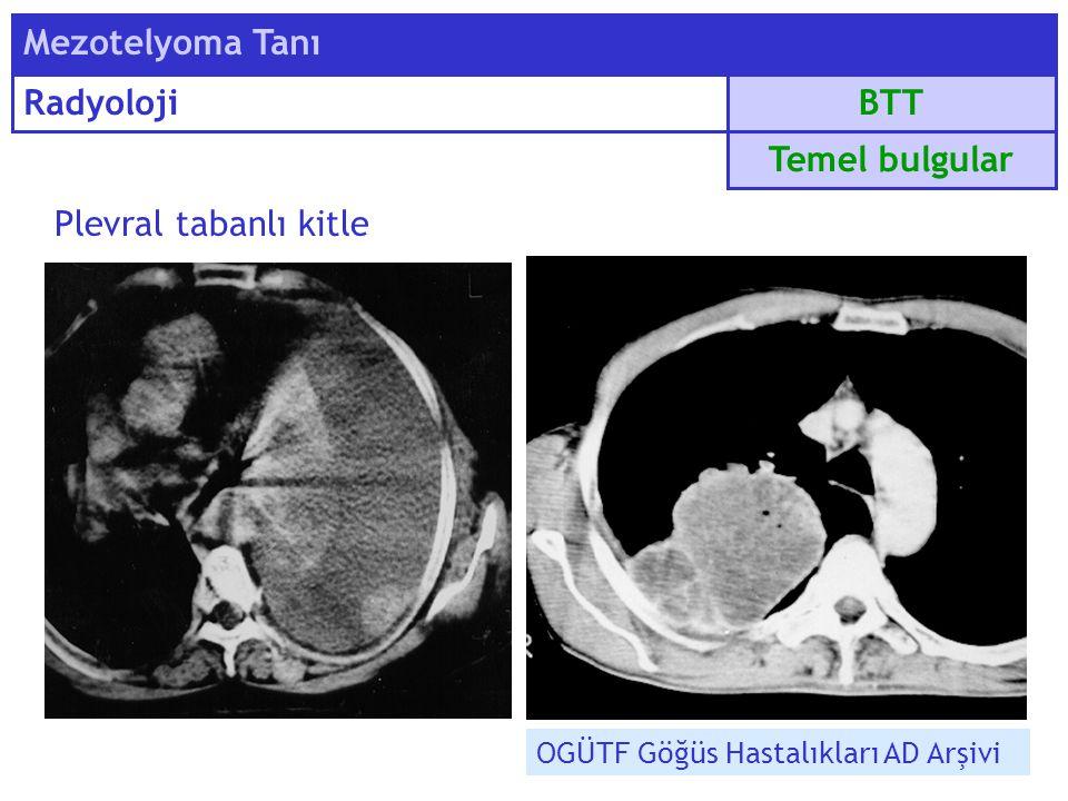 Plevral tabanlı kitle BTT Mezotelyoma Tanı Radyoloji Temel bulgular OGÜTF Göğüs Hastalıkları AD Arşivi