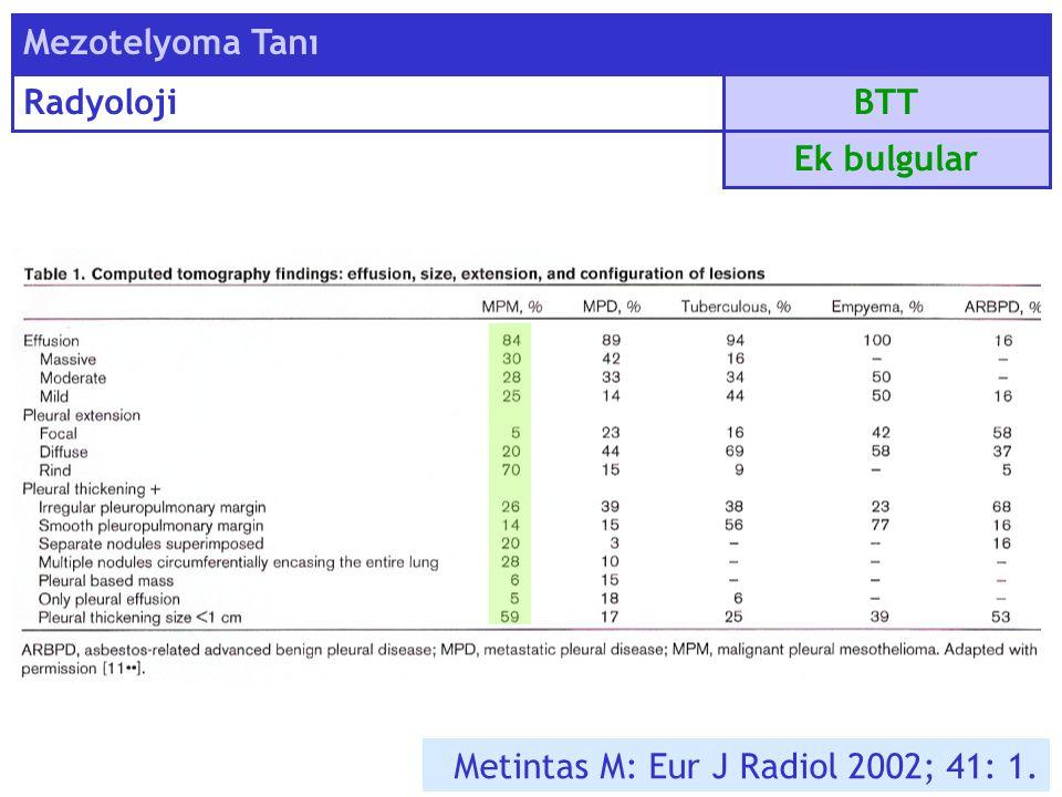 BTT Mezotelyoma Tanı Radyoloji Ek bulgular Metintas M: Eur J Radiol 2002; 41: 1.