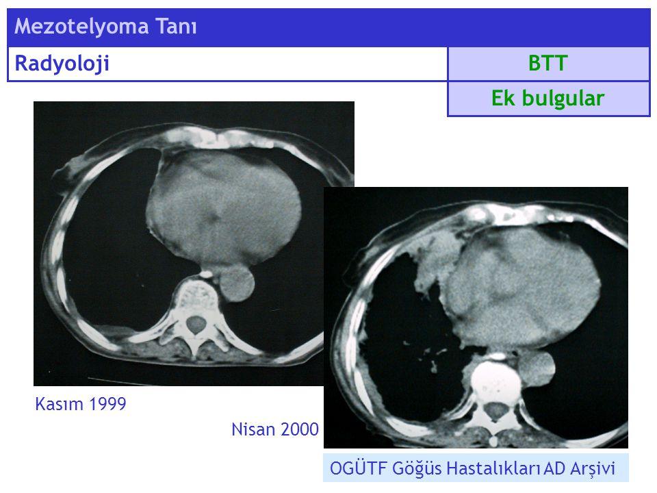 Kasım 1999 Nisan 2000 BTT Mezotelyoma Tanı Radyoloji Ek bulgular OGÜTF Göğüs Hastalıkları AD Arşivi