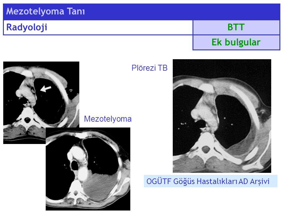 BTT Mezotelyoma Tanı Radyoloji Ek bulgular Mezotelyoma Plörezi TB OGÜTF Göğüs Hastalıkları AD Arşivi