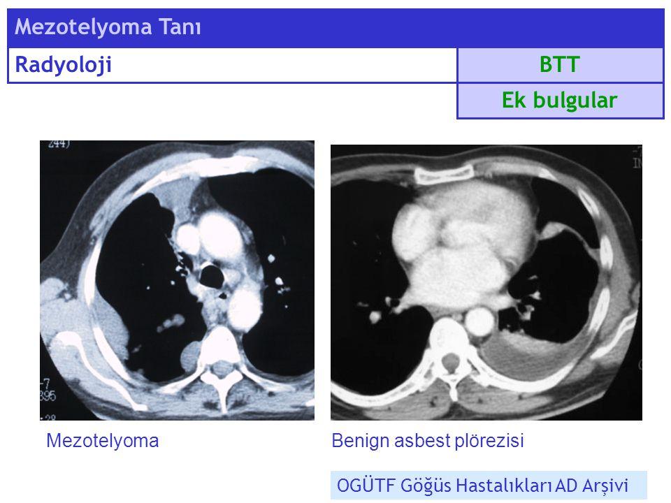 BTT Mezotelyoma Tanı Radyoloji Ek bulgular MezotelyomaBenign asbest plörezisi OGÜTF Göğüs Hastalıkları AD Arşivi