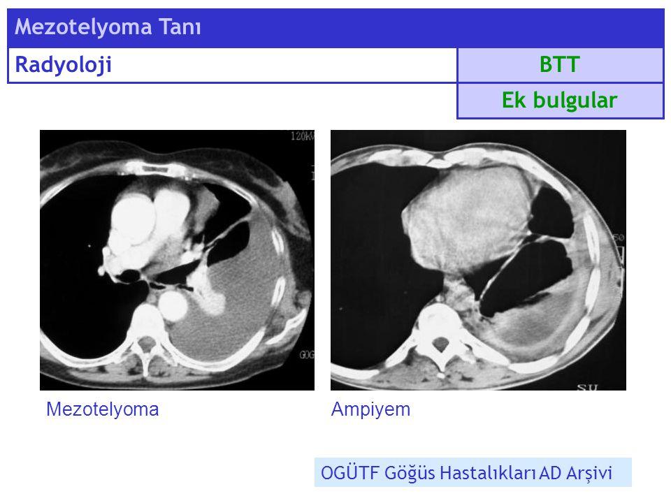 BTT Mezotelyoma Tanı Radyoloji Ek bulgular MezotelyomaAmpiyem OGÜTF Göğüs Hastalıkları AD Arşivi