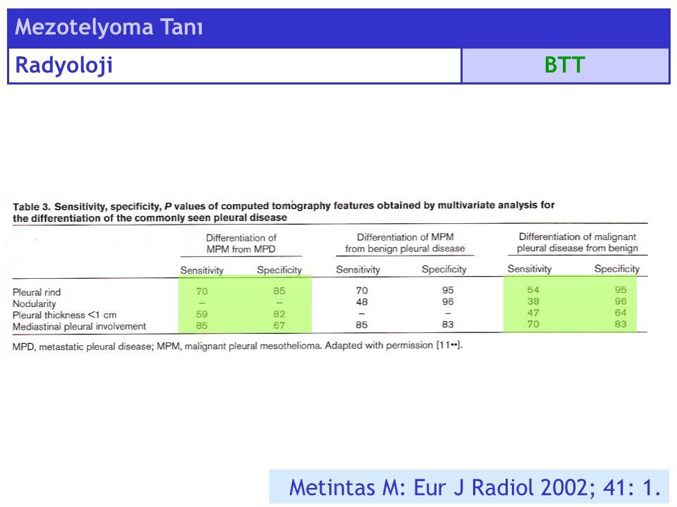 BTT Mezotelyoma Tanı Radyoloji Metintas M: Eur J Radiol 2002; 41: 1.