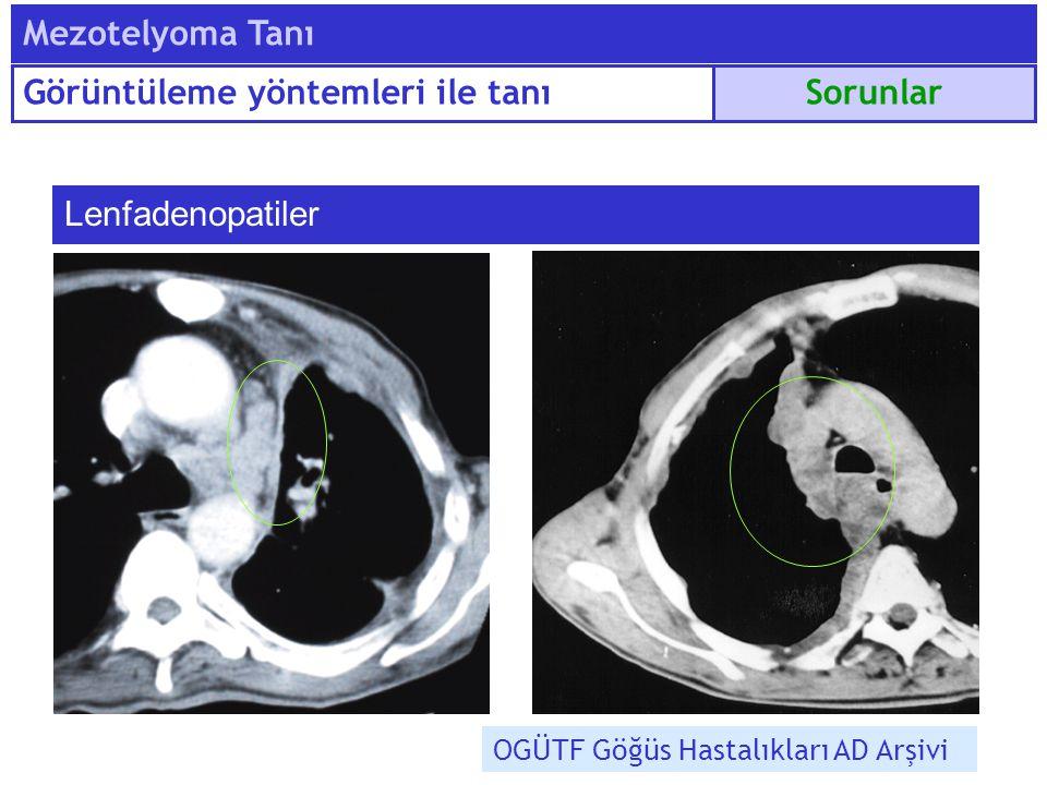 Lenfadenopatiler OGÜTF Göğüs Hastalıkları AD Arşivi Sorunlar Mezotelyoma Tanı Görüntüleme yöntemleri ile tanı