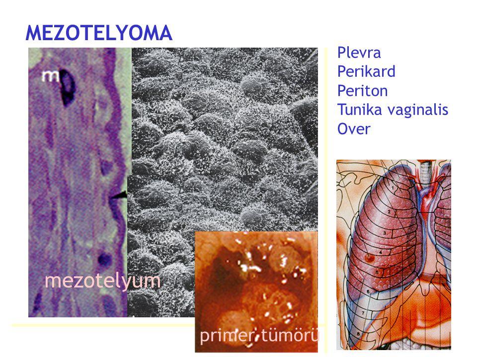 Plevra Perikard Periton Tunika vaginalis Over primer tümörü MEZOTELYOMA mezotelyum