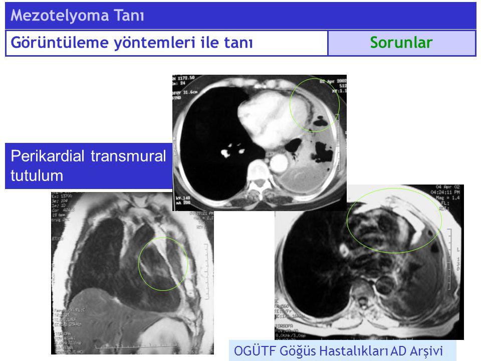 Perikardial transmural tutulum OGÜTF Göğüs Hastalıkları AD Arşivi Sorunlar Mezotelyoma Tanı Görüntüleme yöntemleri ile tanı