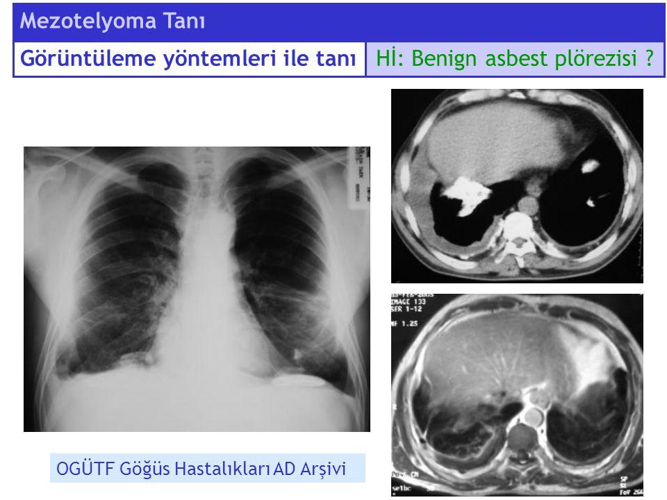 Hİ: Benign asbest plörezisi ? Mezotelyoma Tanı OGÜTF Göğüs Hastalıkları AD Arşivi Görüntüleme yöntemleri ile tanı