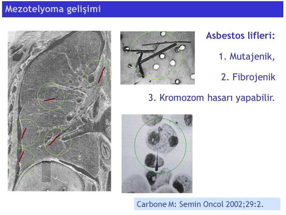 Mezotelyoma gelişimi Carbone M: Semin Oncol 2002;29:2. Asbestos lifleri: 1. Mutajenik, 2. Fibrojenik 3. Kromozom hasarı yapabilir.