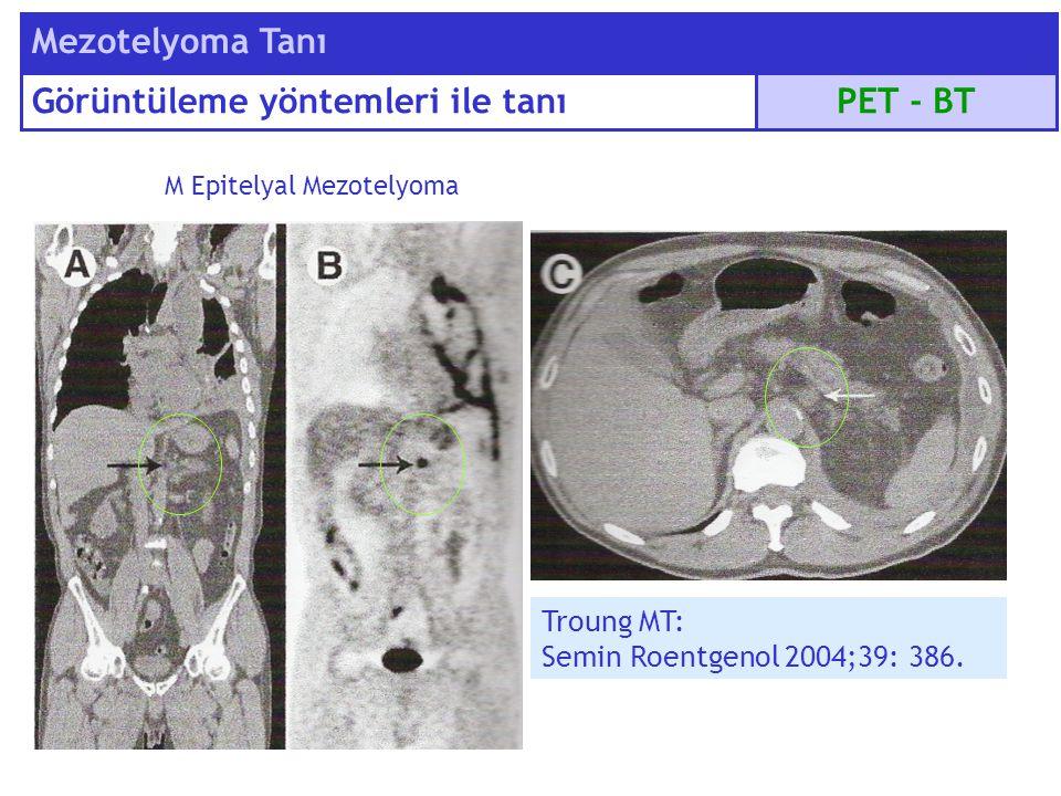 Troung MT: Semin Roentgenol 2004;39: 386. M Epitelyal Mezotelyoma PET - BT Mezotelyoma Tanı Görüntüleme yöntemleri ile tanı