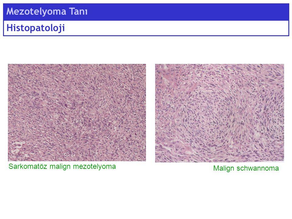 Mezotelyoma Tanı Histopatoloji Malign schwannoma Sarkomatöz malign mezotelyoma