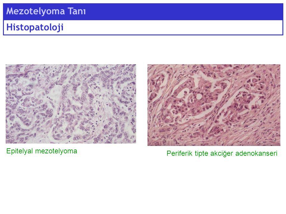 Mezotelyoma Tanı Histopatoloji Epitelyal mezotelyoma Periferik tipte akciğer adenokanseri