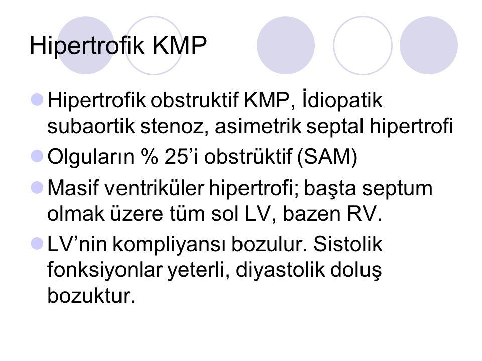 Hipertrofik KMP Hipertrofik obstruktif KMP, İdiopatik subaortik stenoz, asimetrik septal hipertrofi Olguların % 25'i obstrüktif (SAM) Masif ventriküle