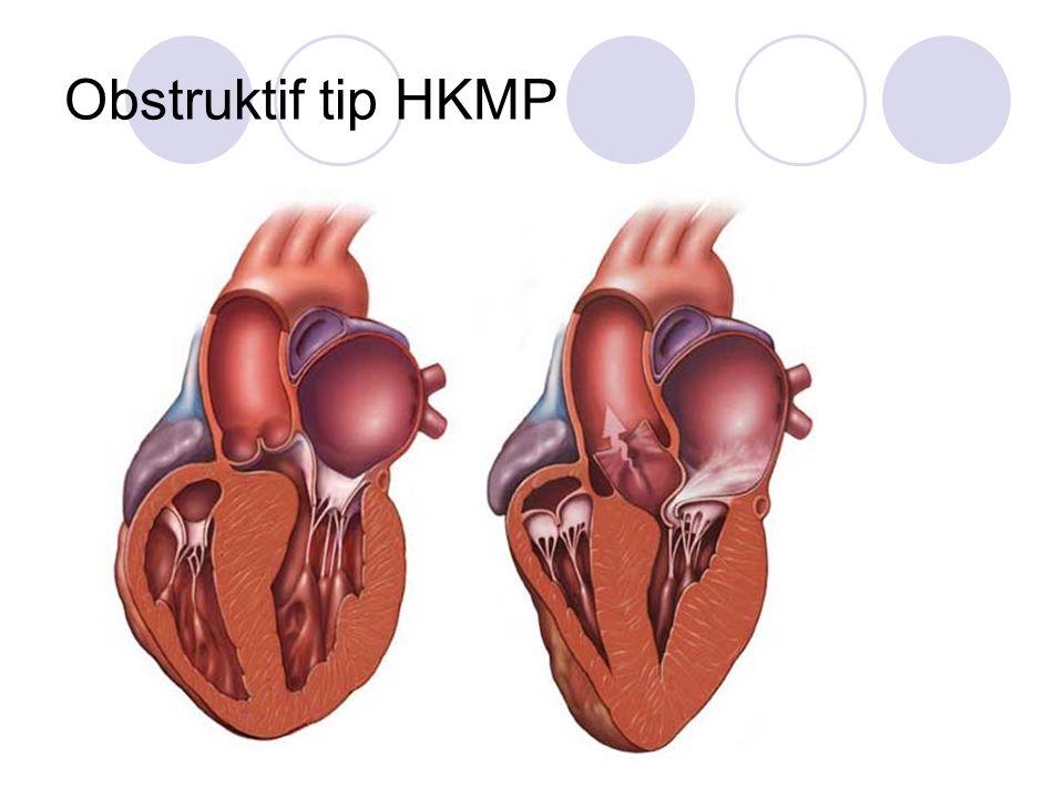 Obstruktif tip HKMP